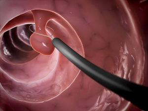 大腸カメラでポリープを切除している画像